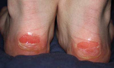 Blasen an den unteren Füßen